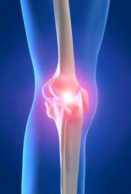Por qué me duele la rodilla