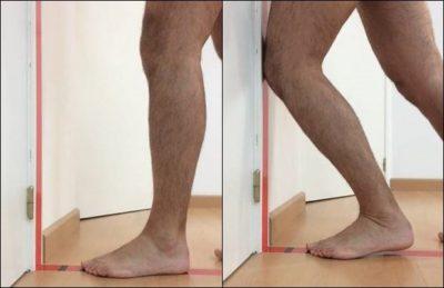 Alineación de rodilla