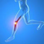 Dolor de rodilla y su relación con la movilidad en tobillo